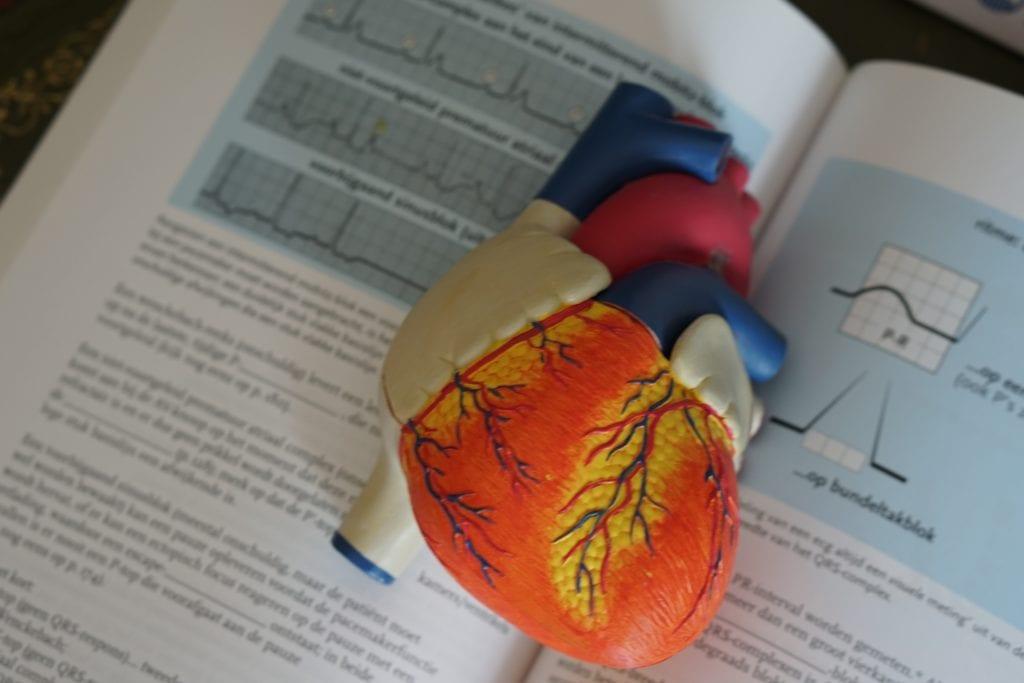 Tagesmüdigkeit - Herzinfarkt